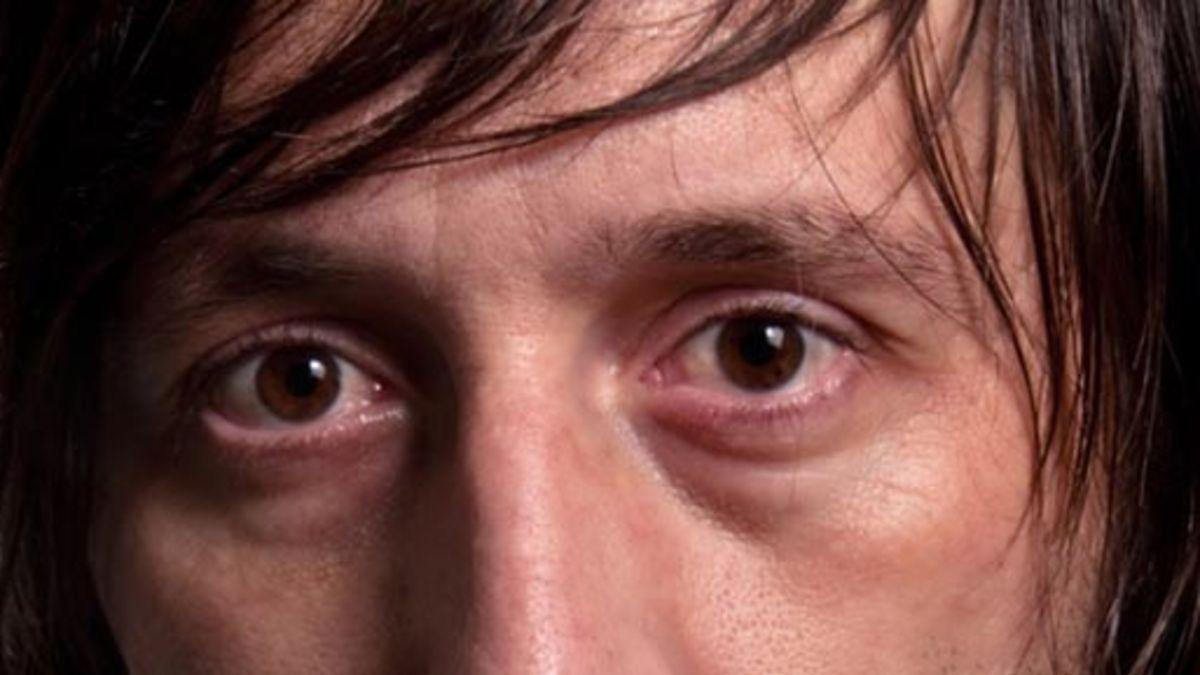 What Causes Dark Circles Under Eyes Webmd in 2020 ...