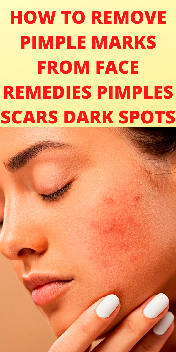 How To Remove Pimple Marks From Face Remedies For Pimples And Face Marks In 2020 Acne Prone Skin Care Acne Prone Skin Care Routine Skin Cure