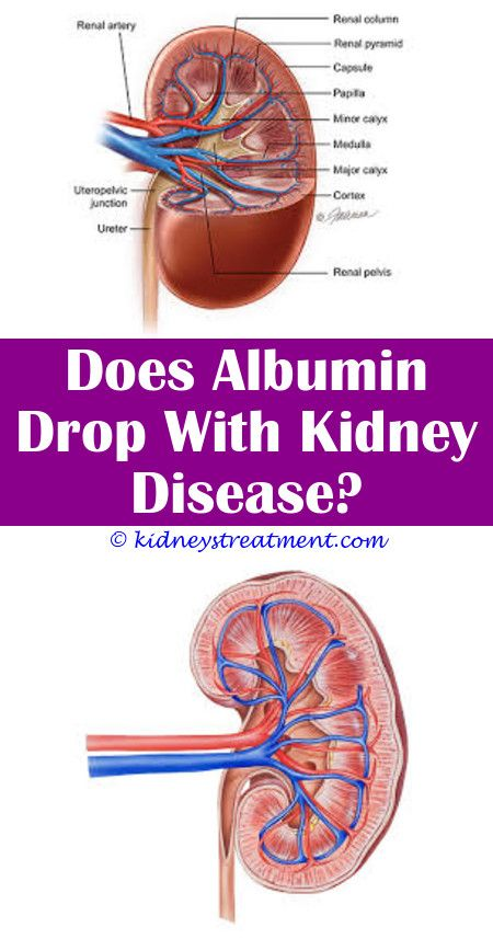 Kidney cleanse medicine kidney infection treatment pinterest kidney cleanse medicine kidney infection treatment pinterest kidney disease sore kidneys and chronic kidney disease ccuart Choice Image