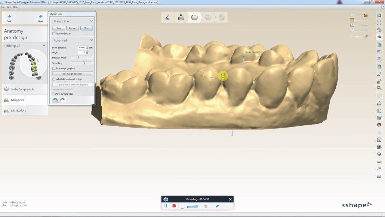 How to Design a Digital Tabletop in 3Shape | Digital Dental