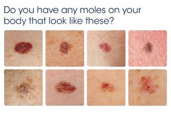 Three Important Facts You Must Know About Your Skin What