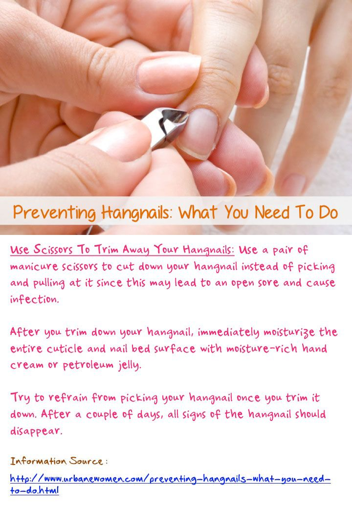 Preventing hangnails: What you need to do - Use a pair of scissors ...