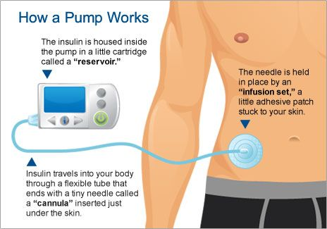 tipo de diabetes katheter