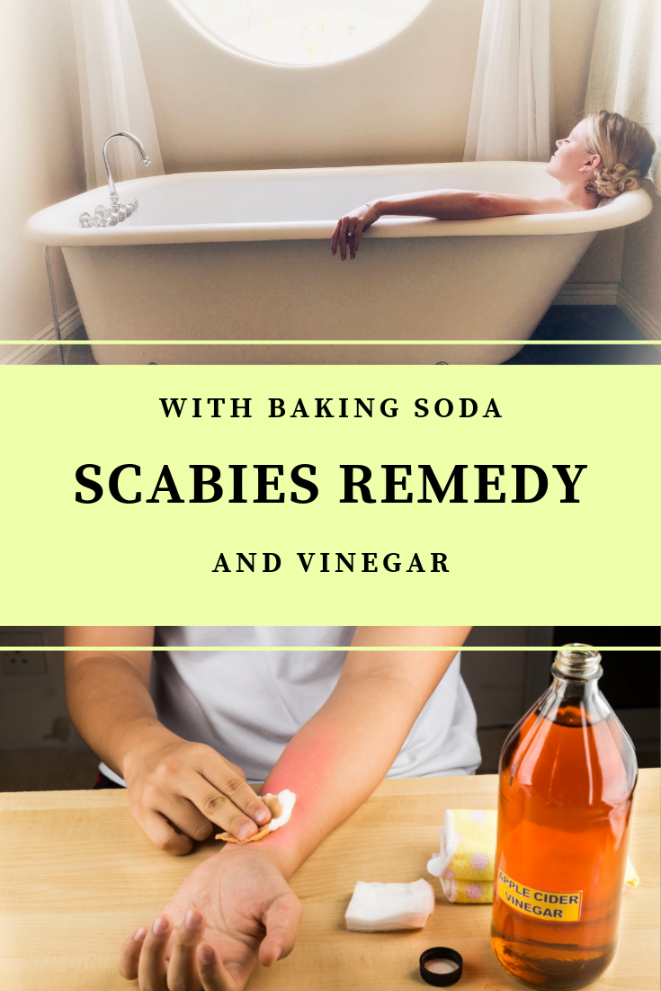 Scabies Remedy (scabiesremedy) on Pinterest