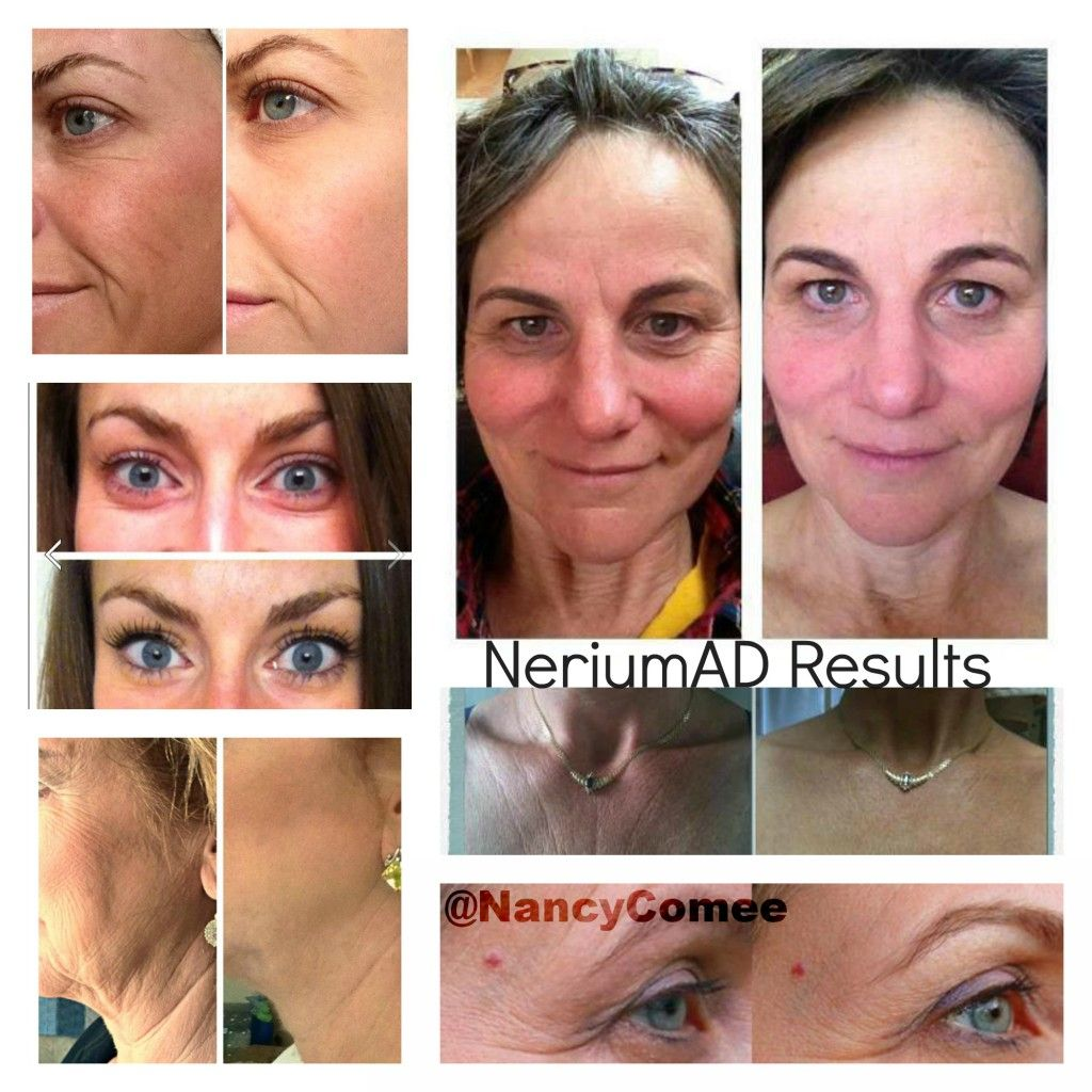 Results like these are why everyone is raving about NeriumAD