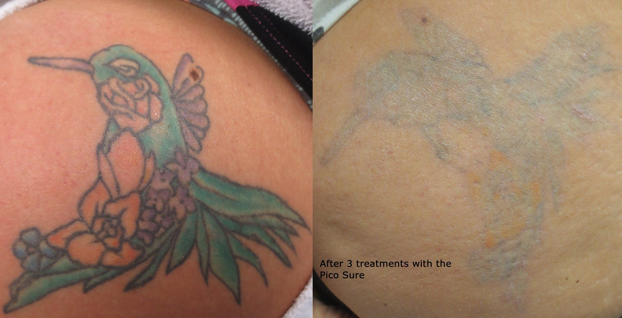 100 laser tattoo removal gallery picosure piqo 4 for Picosure tattoo removal maryland