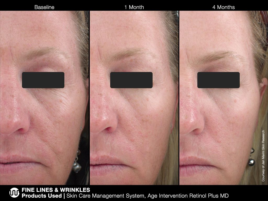 Pin By Salon Estique On Skin Treatments Before And After Retinol Natural Skin Care Shop Retinol Serum