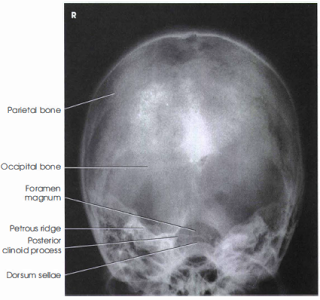SKULL Towne Method AP AXIAL PROJECTION Radiologic
