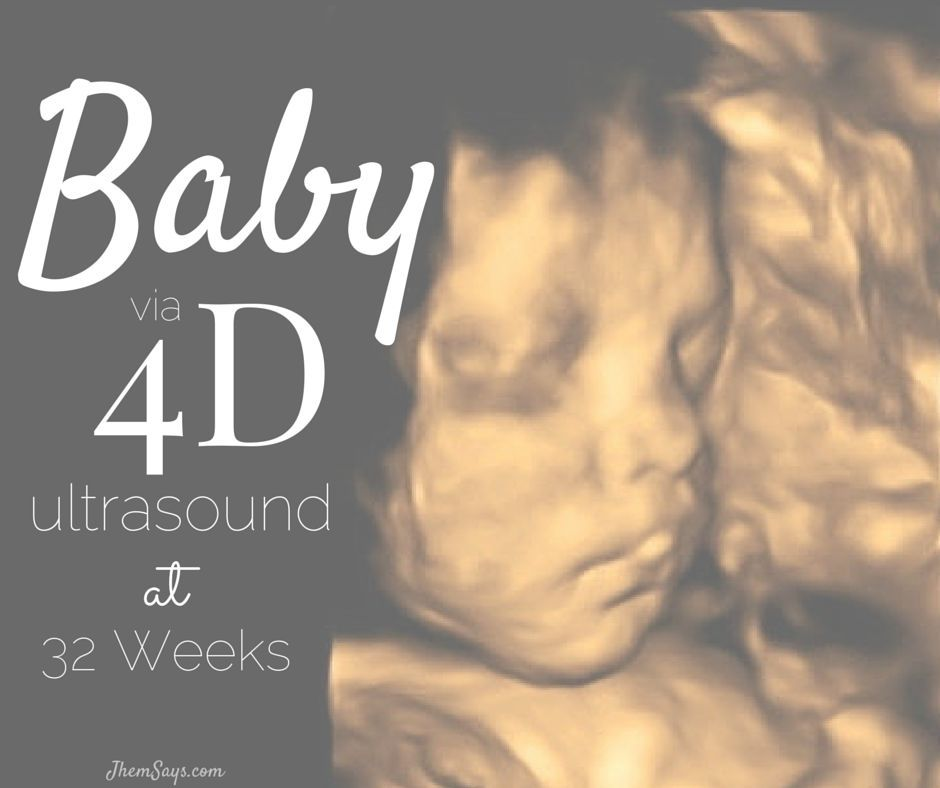 Baby via 4D ultrasound at 32 weeks #baby #ultrasound #4D