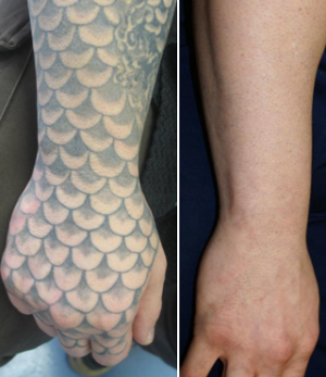 Tattoo Removal (With images) Laser tattoo, Tattoo