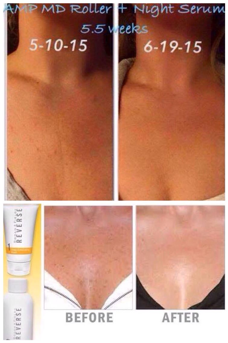 Before and after of Rodan + Fields for your chest area! Redefine AMP MD +