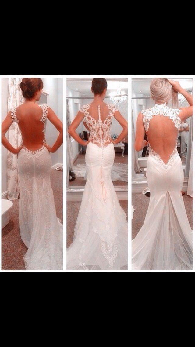 Lace backs