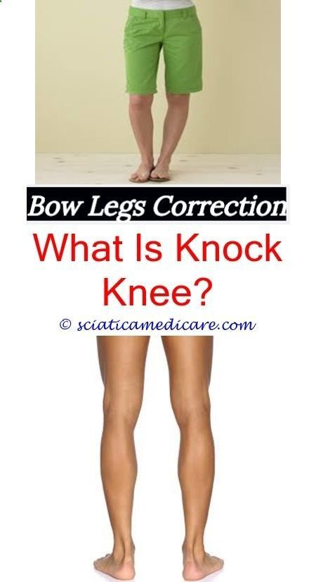 f5017a6960 bracket legs how do people get bow legged - does rickets cause bowed legs.bracket  legs toddler leg development flat feet and knock knees medical term for ...
