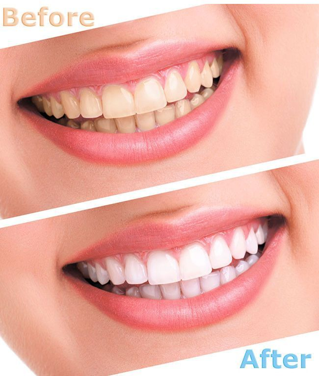 Hollywood Teeth Whitening Home Kit Whitening And Teeth