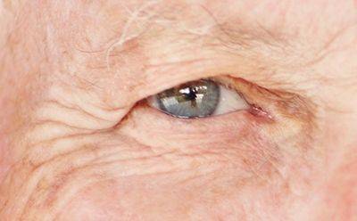 Is your vision cloudy? – Trusted Senior Blog