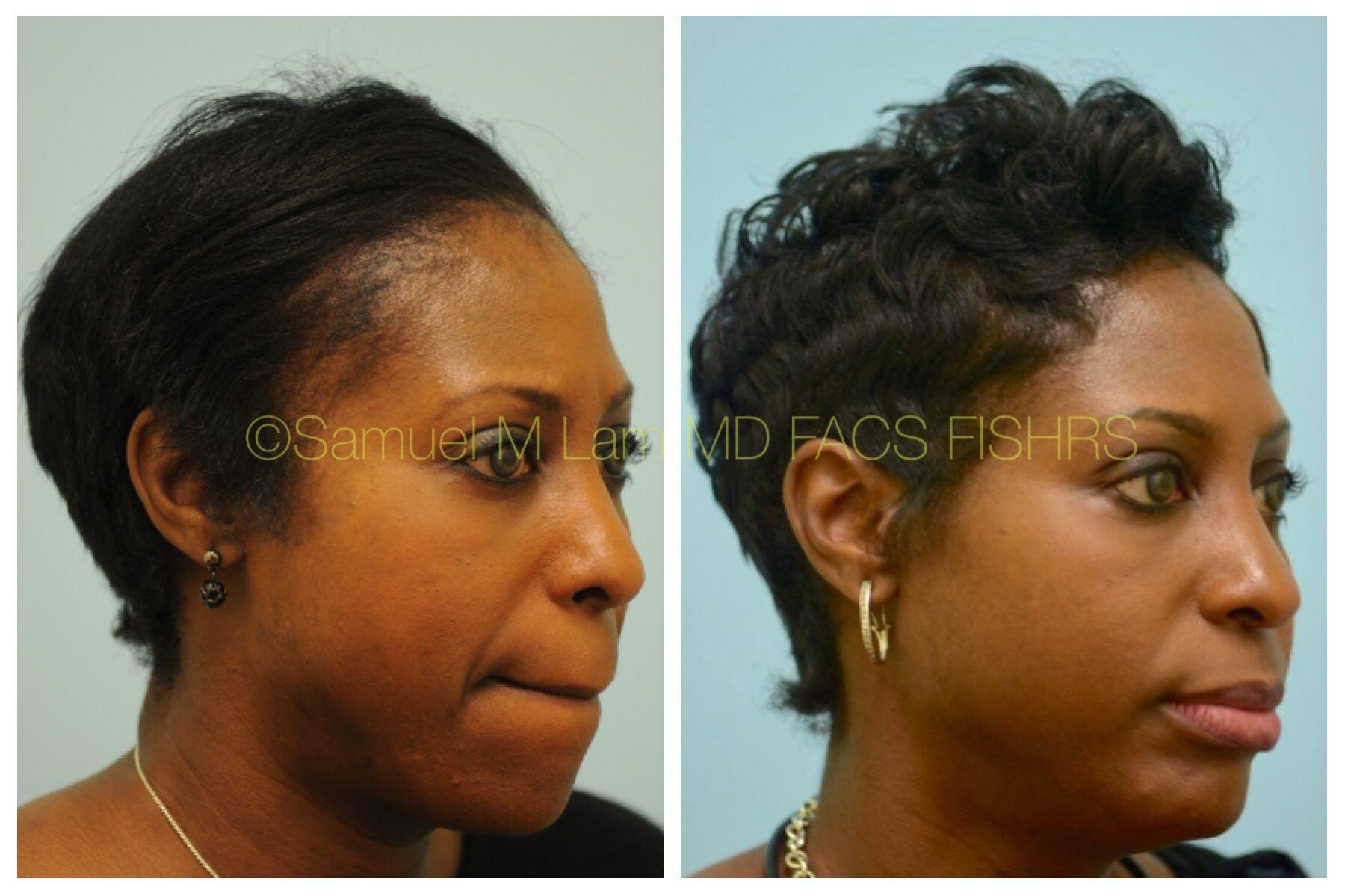 Hair Transplant Black Woman - Hairstyles, celebrity hair ...