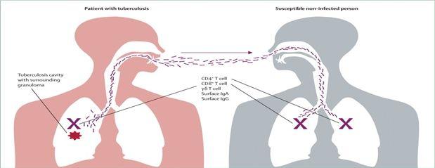 Tüberküloz Nasıl Bulaşır?  Tüberküloz mikrobunun kaynağı, tedavi görmemiş, aktif akciğer ve gırtlak (larinks) veremi olan hastalardır. Öksürmek, hapşırmak, konuşmak ile mikroplar çevre havaya saçılır. Sağlıklı kişiler bu mikropları nefesleriyle alır ve enfekte olurlar. Sokakta, dolmuşta, lokantada öksüren birisinden verem mikrobu alma olasılığı çok düşüktür.