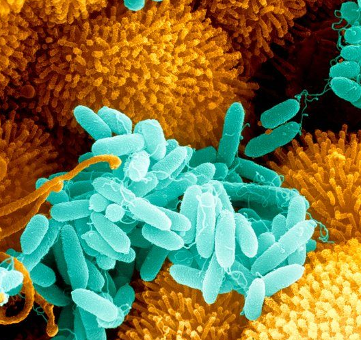 Viral Infections May Affect Cystic Fibrosis Patients: Pseudomonas Aeruginosa Is Cultured In Biofilms In The