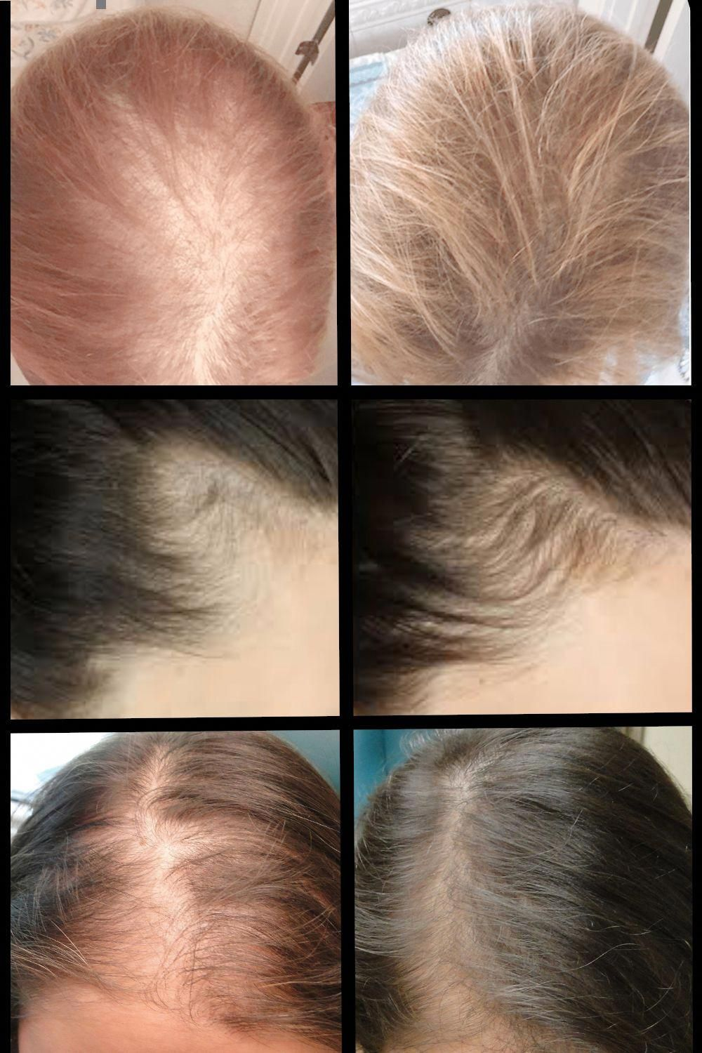 Find out the Latest Treatments for Hair Loss Shocking