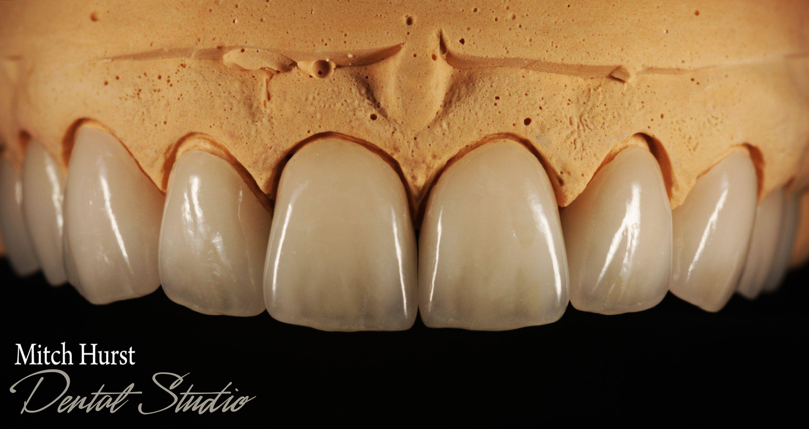 Dental Crowns Smile Aesthetic Beauty Hurstdentalstudio Com Dental Dental Images Dental Lab