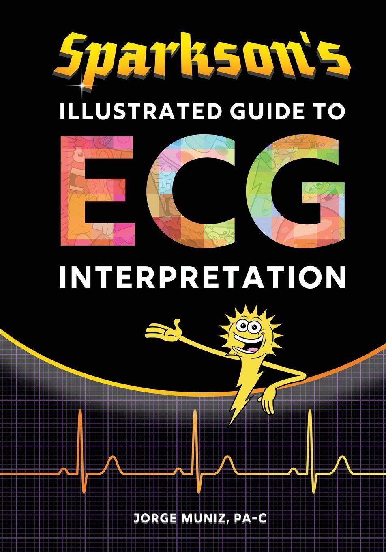 Sparkson S Illustrated Guide To Ecg Interpretation Jorge Muniz 9780996651318 Amazon Com Books Ecg Interpretation Interpretation Book Format