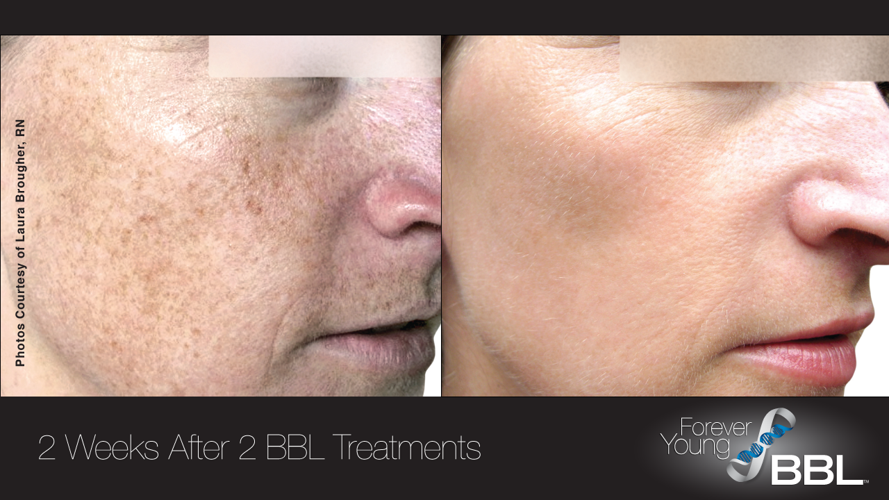 Forever Young Bbl Sciton Http Foreveryoungbbl Com Medical Skin Care Top Skin Care Products Laser Skin Treatment