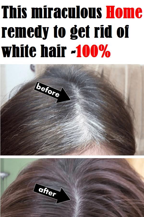 82b1daf9709327f9be1eebfeefbfd400 - How To Get Rid Of White Hair In Teenage Naturally
