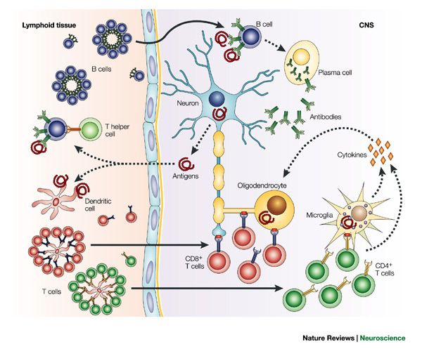 Pathophysiology And Clinical Presentation Correct Diagnosis Multiple Sclerosis Case Study Multiple Sclerosis Esclerosis Multiple Diagnosis