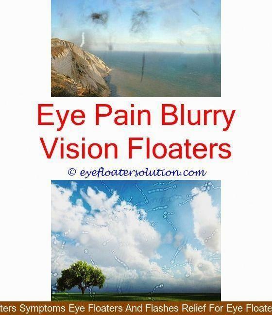 Eyes vision: Eye Vision Floaters