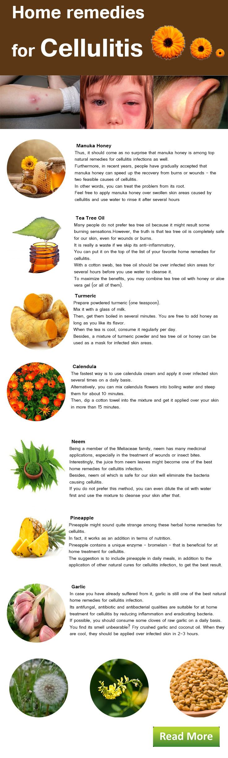 Home remedies for cellulitis: how to get rid of cellulitis