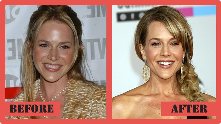 Marvelous Julie Benz Plastic Surgery Before And After Julie Benz Plastic Surgery  #JulieBenzPlasticSurgery #JulieBenz #celebritypost