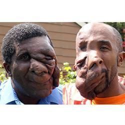 Really. maurice simpson facial tumors
