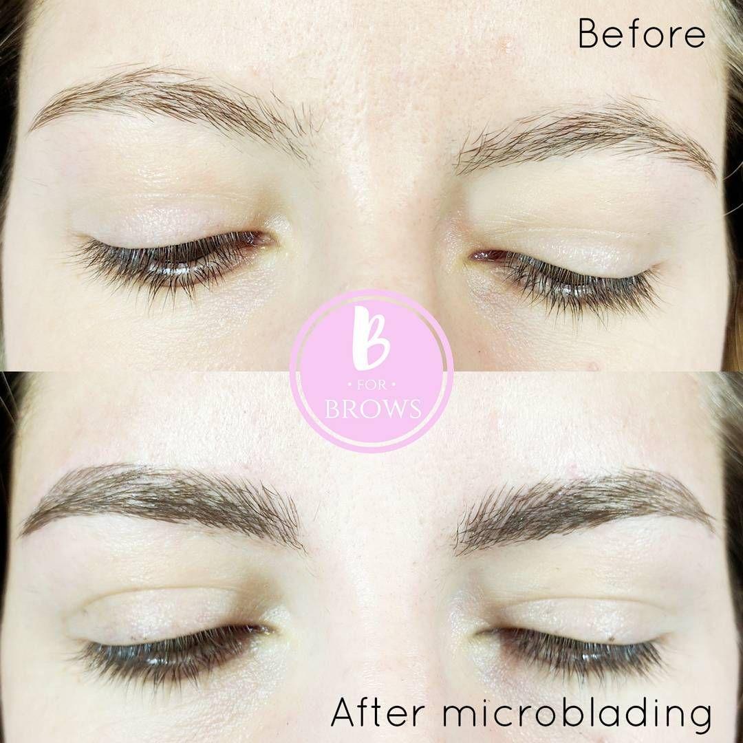 Microblading Brunette Eyebrows Bforbrows 604 715 2846