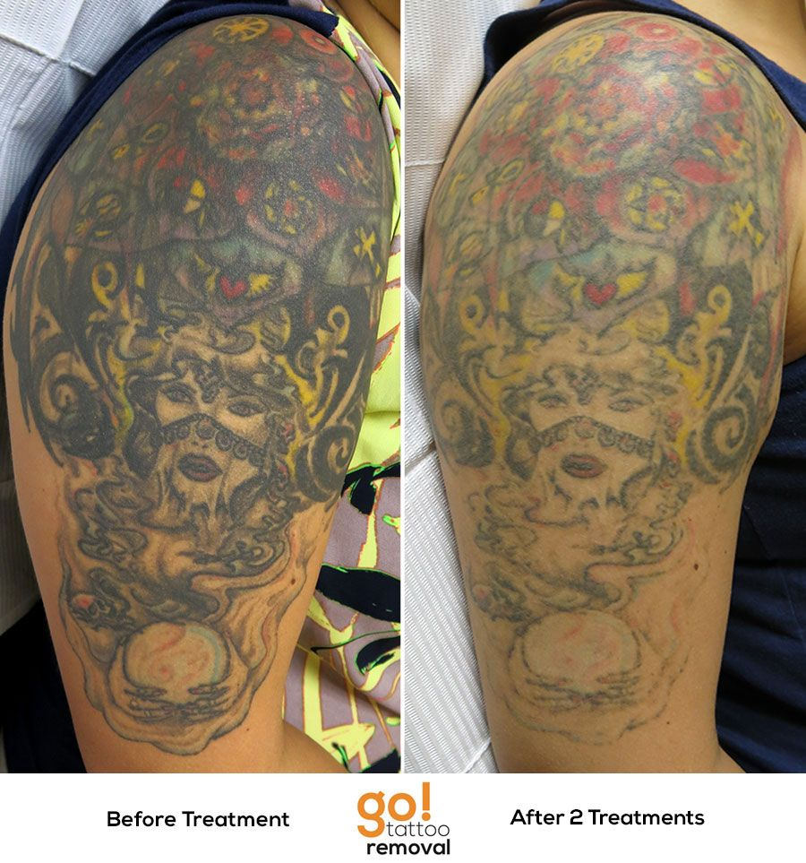 This coverup wasn't to the client's liking so we started