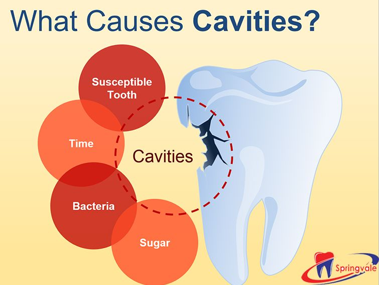 Causes Of Cavity Younger Generation On The Ill Effects Of Sugar Loaded Snacks And Junk Food To Find More Visit Spr Dental Cavities Dentistry Dental Hospital