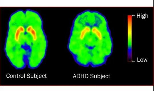 Adhd Vs Typical Brain