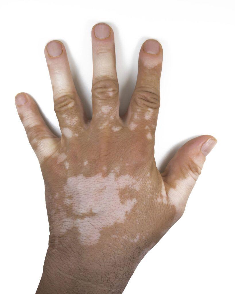 Essential Oils For Vitiligo: When The Natural Skin Pigment Calls It A Day! Essential…