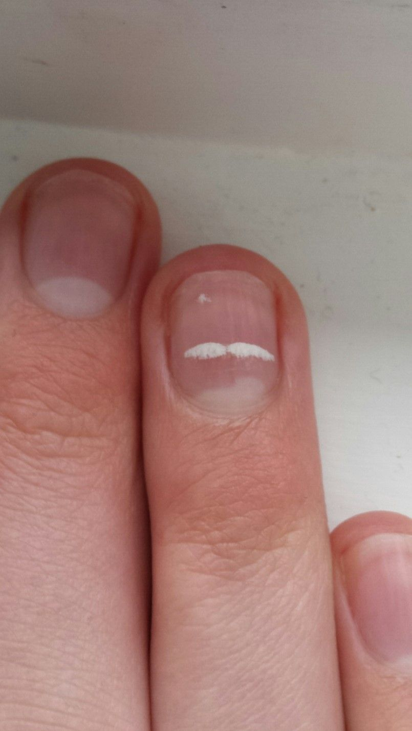 A leukonychia spot the shape of a mustache on my finger | Nail ...