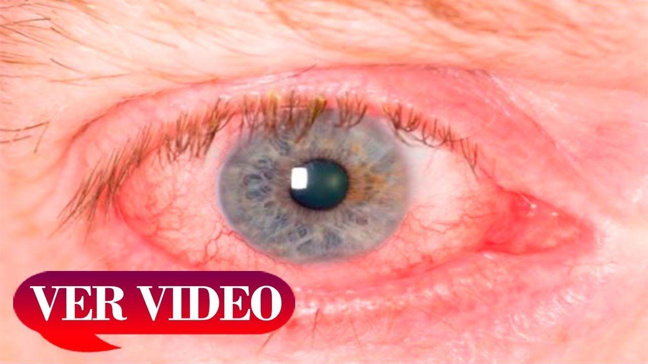 ¿Puedes revertir el daño ocular causado por la diabetes?