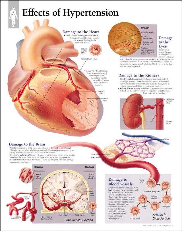 Effects Of Hypertension Hypertension High Blood Pressure