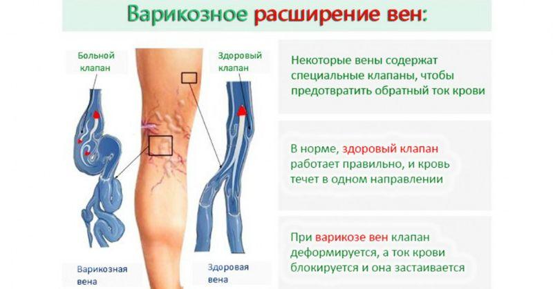 Варикозный дерматит нижних конечностей - лечение вен на ногах, как выглядит на фото