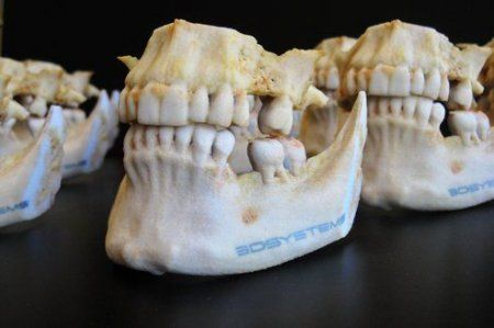 Des imprimantes 3D pour la chirurgie réparatrice | Actualité | LeFigaro.fr - Santé
