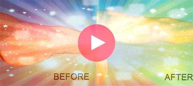 liposuction vs arm lift 12  Liposuction before and after   all time best pin Arm liposuction vs arm lift 12  Liposuction before and after   all time best pin  Opt for Arm...