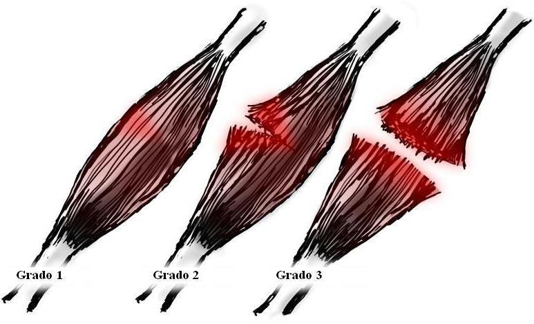 proceso de recuperacion muscular