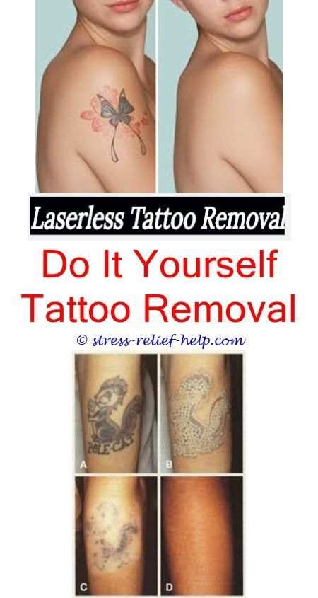 Erase tattoo removal did pharrell williams get his tattoos removed erase tattoo removal did pharrell williams get his tattoos removed how to remove henna tattoos at homermanent tattoo removal how to remove tat solutioingenieria Image collections
