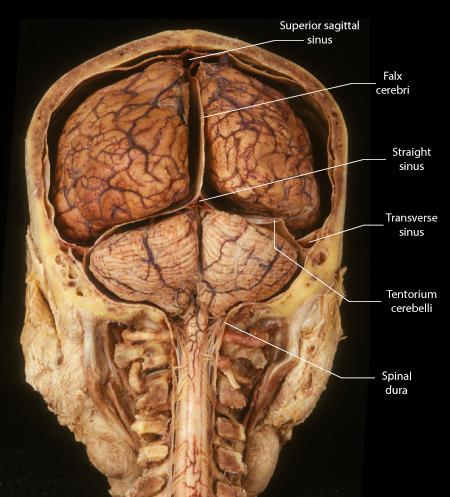 Dural Partitions   Brain, Sinusitis, Meningitis