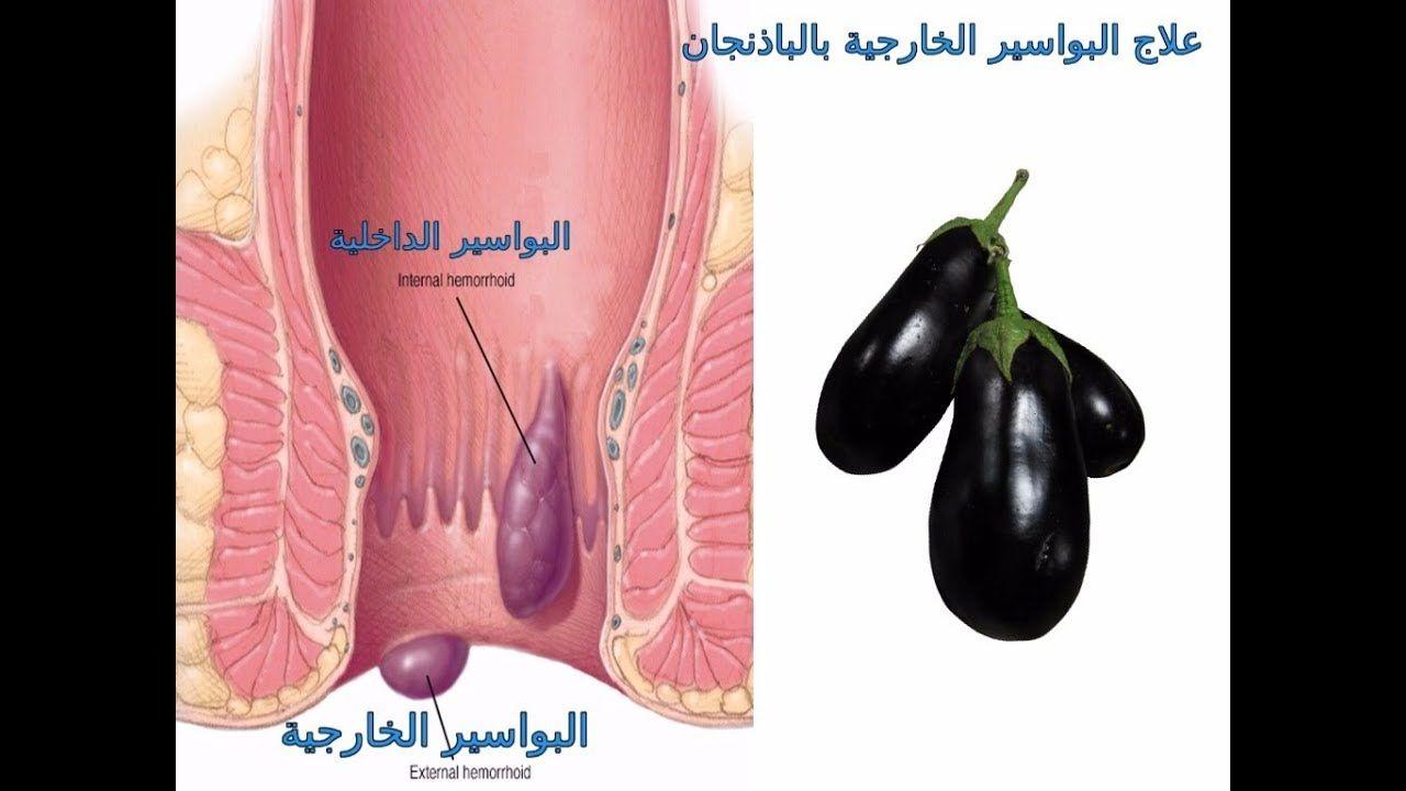 واخيرااا بحمد الله وصفة مجربة وعلاج نهائي للبواسير الداخلية والخارجية والقولون العلاج مع عمر Youtube Vegetables Food Eggplant