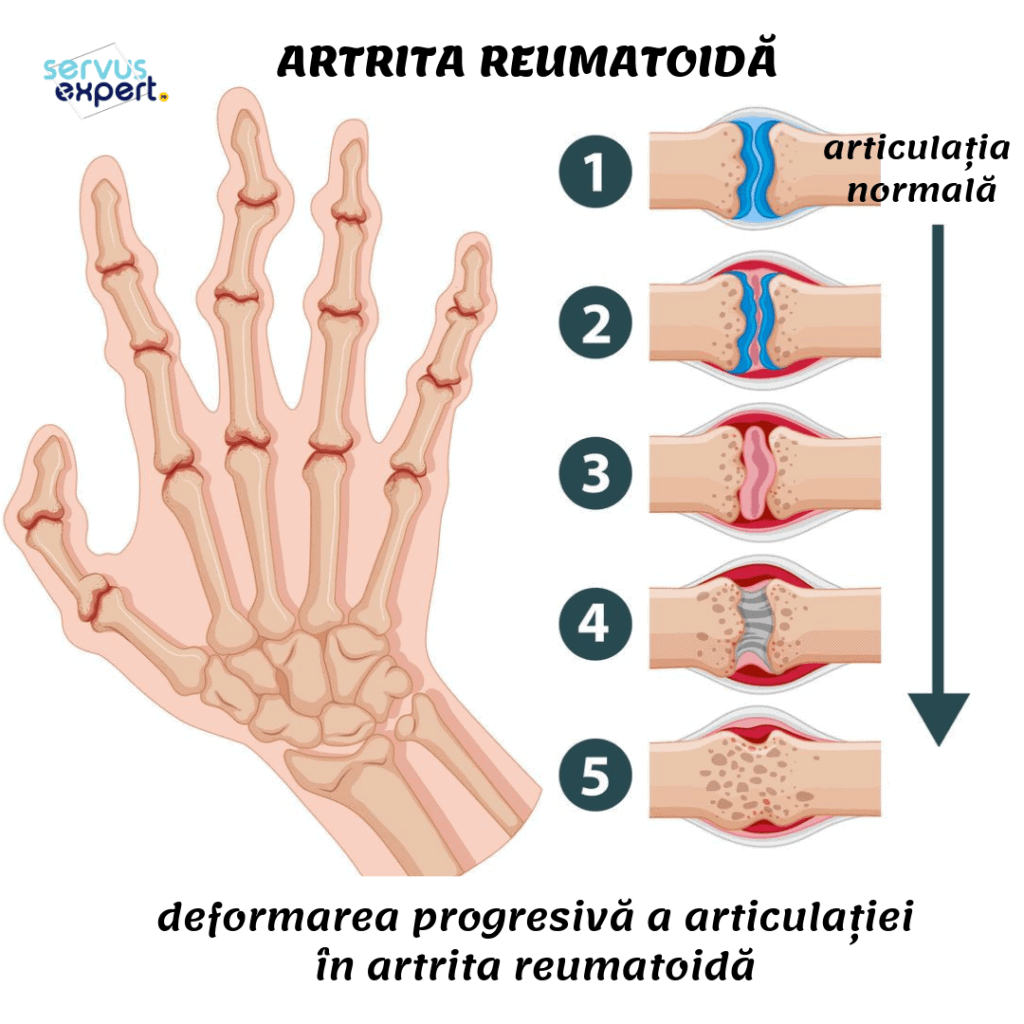 de ce articulațiile doare cu artrita reumatoidă înroșit și dureros articulație pe mână