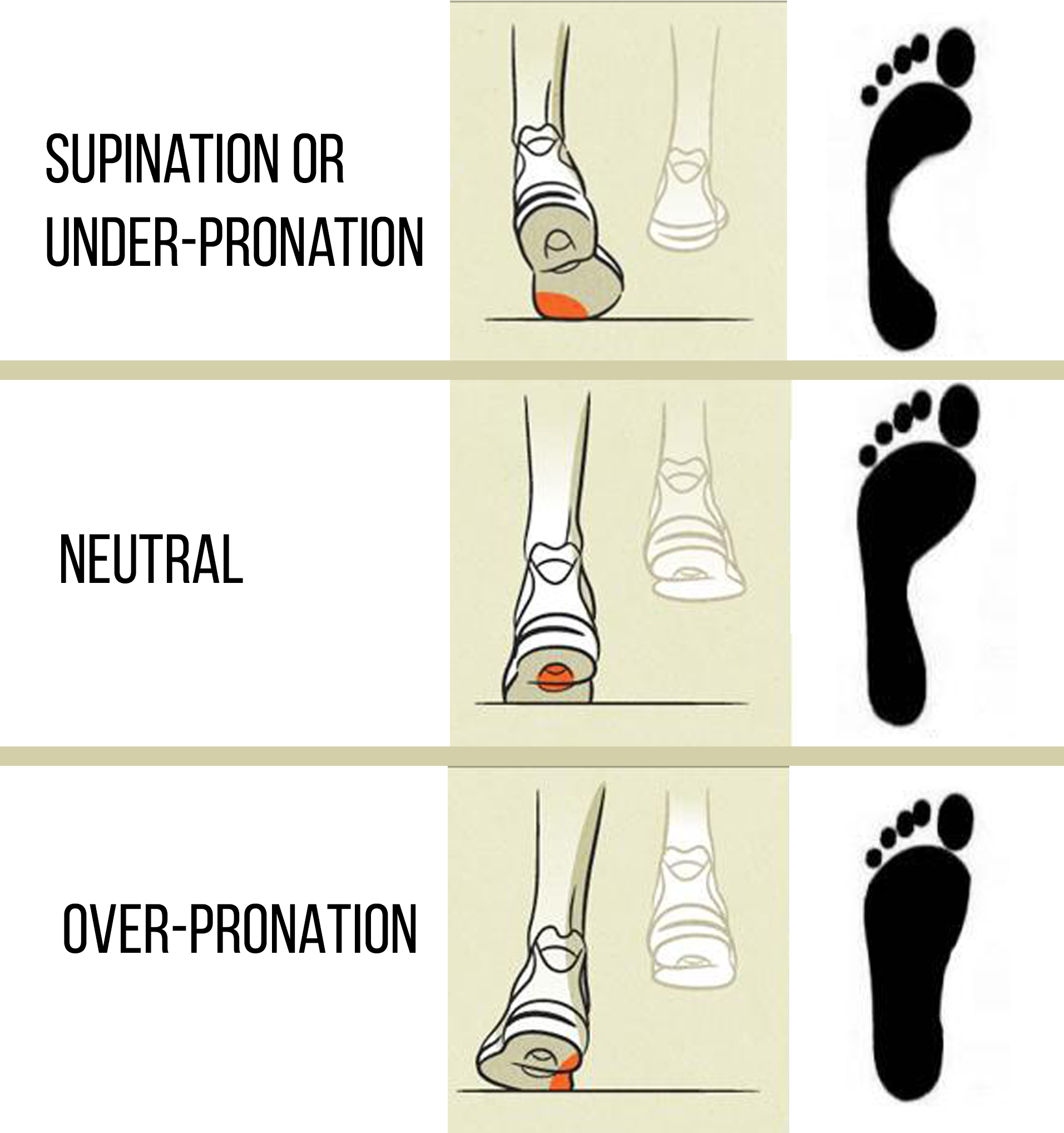 Foot Massage Therapy Diagram 2002 Gm Radio Wiring Over Pronation And Under Gym Monk Pinterest