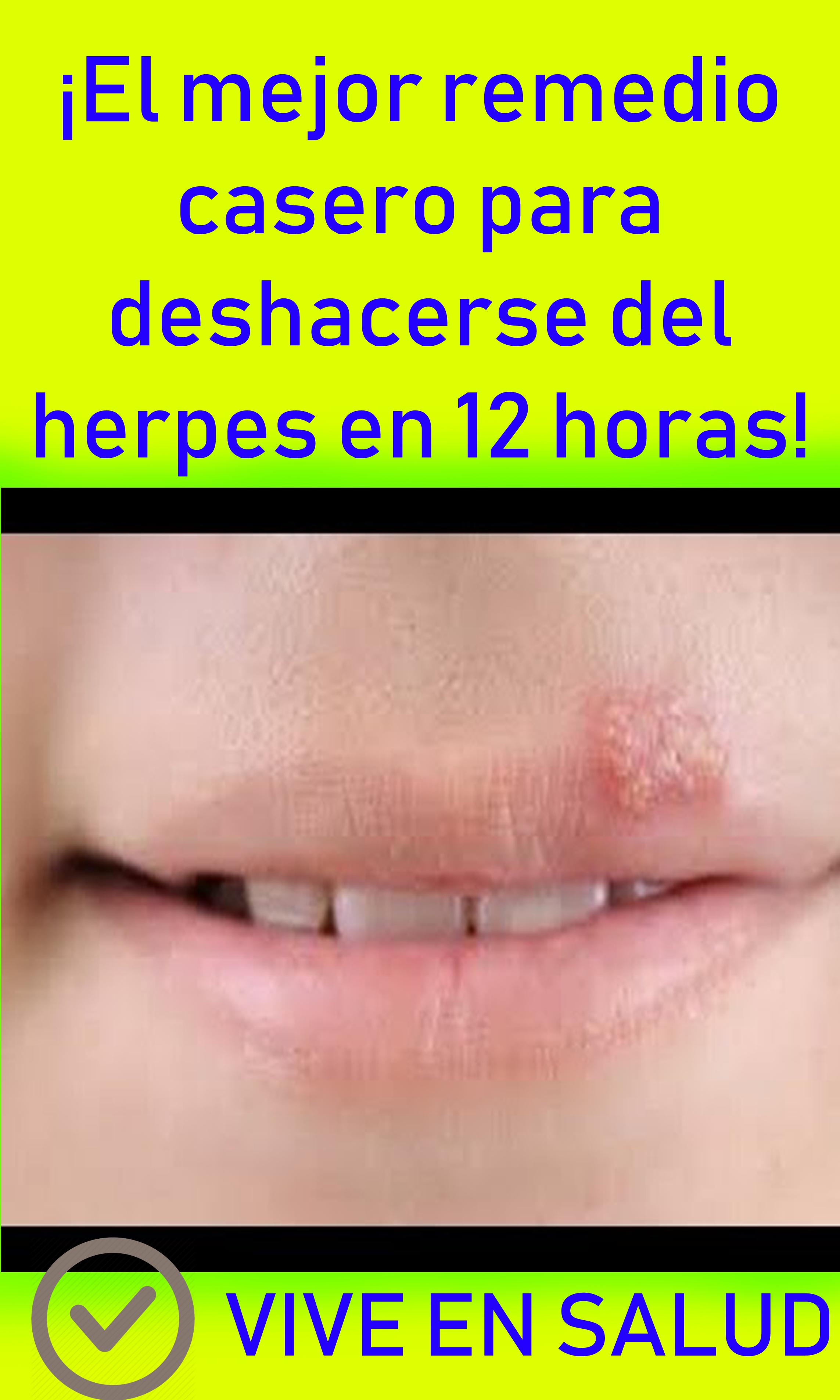 herpes labial cura remedios caseros